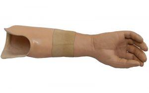 prosthetic arm